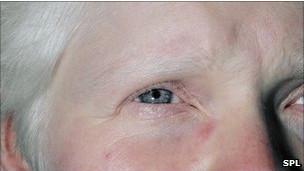 ojo de un albino