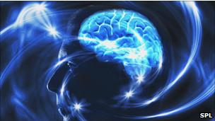 Cérebo. SPL