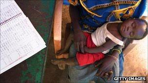 Criança sofre com malária no Sudão do Sul (Getty)