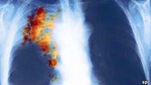 صورة بالأشعة لصدر مريض مصاب بسرطان الرئة