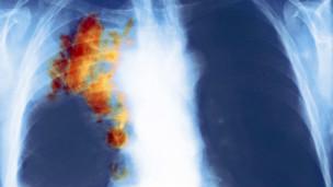 Radiografía coloreada del tórax de un paciente con cáncer de pulmón
