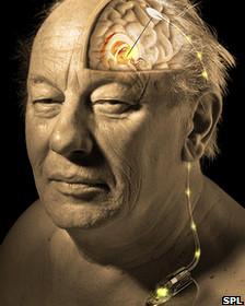 Modelo de un cerebro expuesto