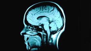 O cérebro humano (Arquivo/ BBC)