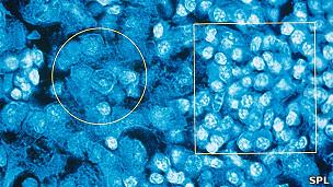 Células afectadas por el cáncer de tiroides.