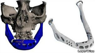 Los huesos hechos en impresora 3D ya están aquí 120206174640_sp_mandibula_bionica_304x171_layerwise