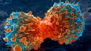 El ayuno, terapia prometedora contra el cáncer   120208165222_cancer_lung_304x171_spl_nocredit