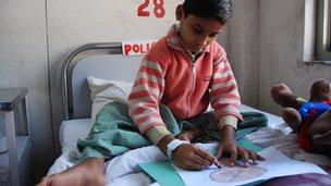 Niño con polio en India