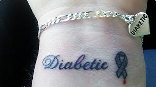 Tatuaje médico (Foto cortesía de Diabetes Advocacy).