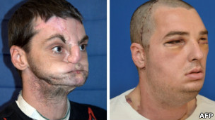 Richard Norris, antes e depois do transplante (AFP)