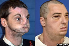 Richard Norris: before transplant (L) and after transplant (R)