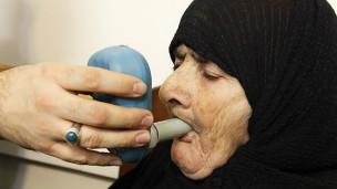 مصدومان حملات شیمیایی عراق به ایران پس از دو دهه