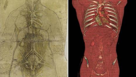 Torso de Leonardo y torso real