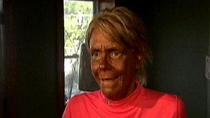 Patricia Krentcil afirma que é inocente e nunca levou filha para cabine de bronzeamento artificial (BBC)
