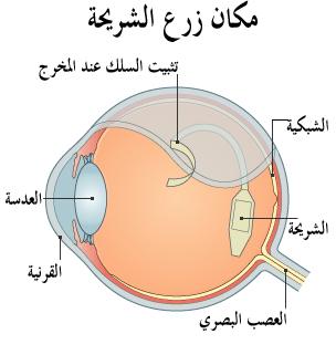 بريطانيا: زراعة شريحة إلكترونية بشبكية العين لاثنين من فاقدي البصر 120503174029__497544