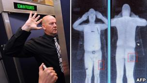 Мужчина в сканере
