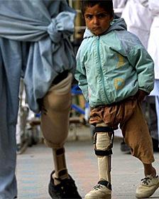 Niño con polio en Pakistán