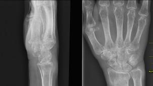 Osteoporoz ancak kemiklerin zayıflayarak kırılmasıyla teşhis edilebiliyor
