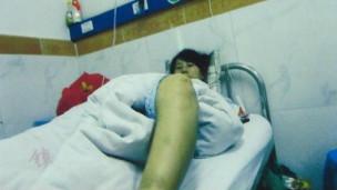 冯建梅引产手术后(网论截图)