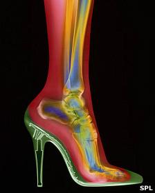 Zapato y pie, radiografía
