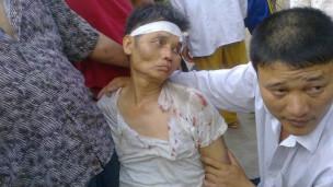 Một người dân Văn Giang bị đánh