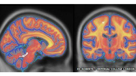 Los cinturones negros mostraron diferencias estructurales en partes específicas del cerebro (en blanco). Un puñetazo fulminante de karate se origina más en el poder del cerebro que en el de los músculos, sugiere una investigación realizada en Londres. En una competencia de golpes hecha con fines científicos, expertos Imperial College y de la University College de Londres analizaron qué hay detrás de un puñetazo poderoso: ¿la fuerza física o la mente? Los científicos se adentraron en las profundidades del cerebro de karatecas consumados para obervar las alteraciones que registran las regiones cerebrales encargadas de controlar el movimiento. Según el estudio,