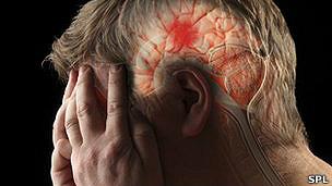 coágulos cerebrales