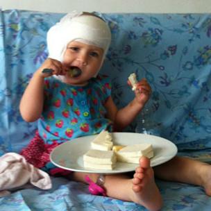 Evie, após a cirurgia que restaurou sua audição (Arquivo pessoal)