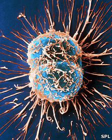 Células de cáncer cervical