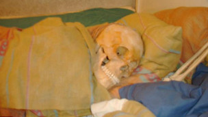 121123222310_skeleton_304x171_internet_nocredit.jpg