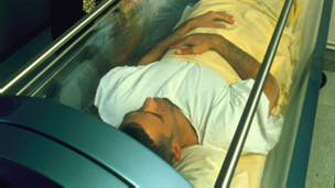 Terapia de oxigenación hiperbárica