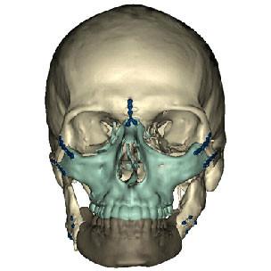 Trasplante de cara de la Universidad de Maryland