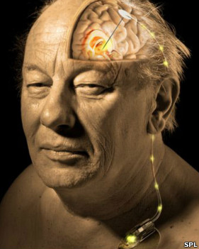 Marcapasos cerebral