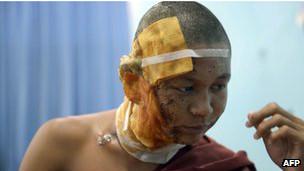 受傷的一名僧侶