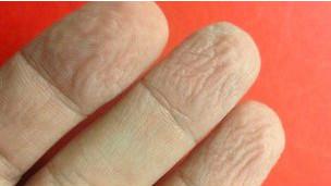 Dedos enrugados