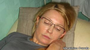 Тимошенко синяки