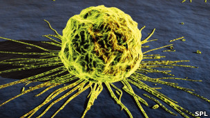 Célula de cáncer de pecho