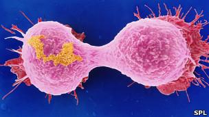 Célula de cancer de pecho