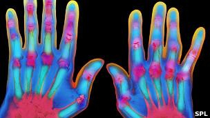 Manos con artritis reumatoide