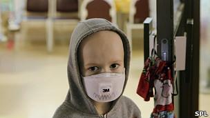Niño ruso con cáncer