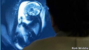 Escáner cerebral de un feto (Foto: Rob Widdis)