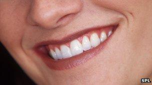 قال باحثون بريطانيون إن أطباء الأسنان قد يتمكنون في يوم من الأيام من أن يستبدلوا أحد الأسنان المفقودة بأخرى تجري زراعتها من خلايا اللثة.