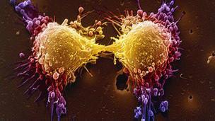 tumor na próstata