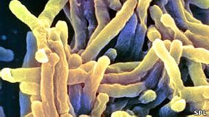 Bacteria que causa TB, Mycobacterium tuberculosis
