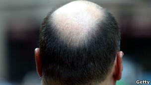 ¿Por qué entre los hombres lo primero que se pierde es el cabello de la coronilla?