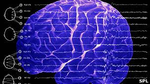 Ondas del cerebro durante el sueño