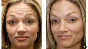 Antes y después de un tratamiento con Bótox
