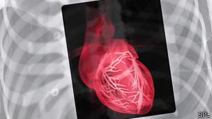 coração (foto:SPL)