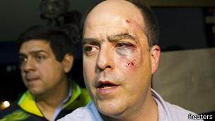 Deputado oposicionista que esteve envolvido nos conflitos de terça (Reuters)