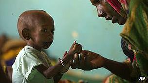 Niño en estado de desnutrición