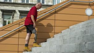 Hombre subiendo escalera con prótesis